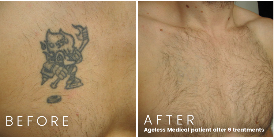 tattoo removal fort lauderdale