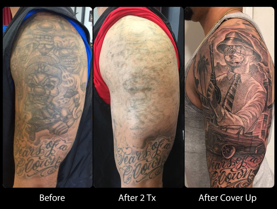 Before/After/Coverup